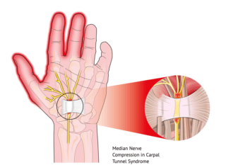 Median Nerve Compression