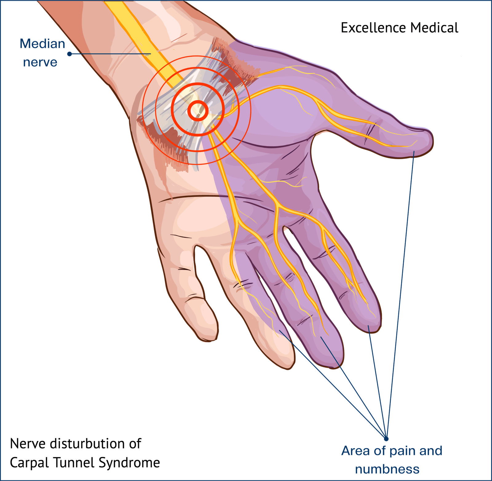 Signs and Symptoms 1