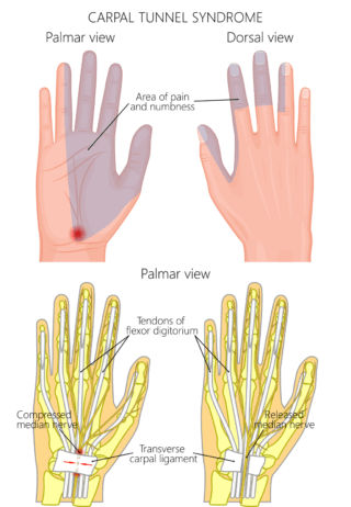 Carpal Tunnel Syndrome 1